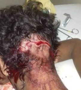 Acusados de arrombamento e lesão corporal são presos em São Bento